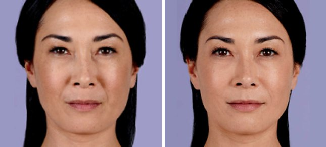 Juvéderm procedure woman patient before and after front photo 6