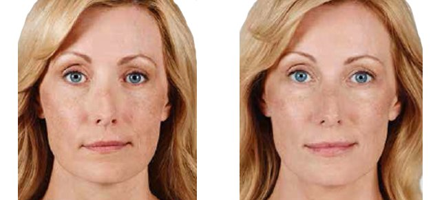 Juvéderm procedure woman patient before and after front photo 7