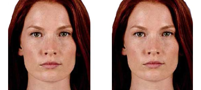 Juvéderm procedure woman patient before and after front photo 8