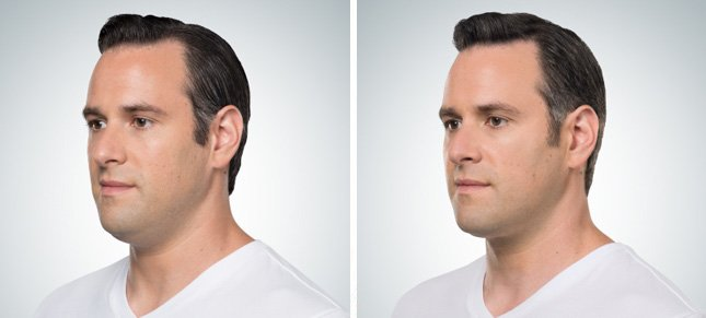 Kybella procedure man patient before and after front photo 1