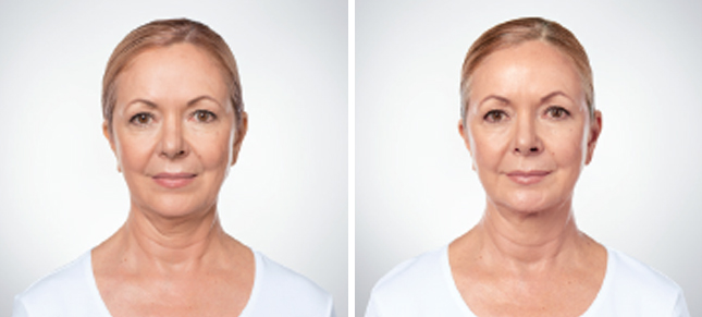 Kybella procedure woman patient before and after front photo 6