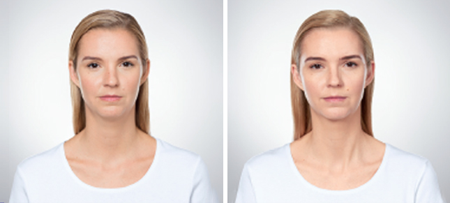 Kybella procedure woman patient before and after front photo 1
