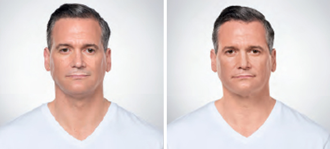 Kybella procedure man patient before and after front photo 2