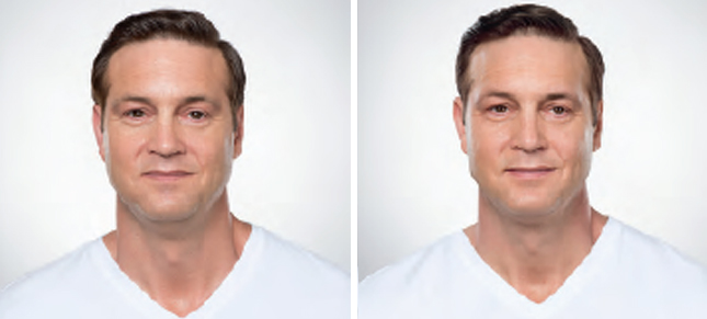 Kybella procedure man patient before and after front photo 3