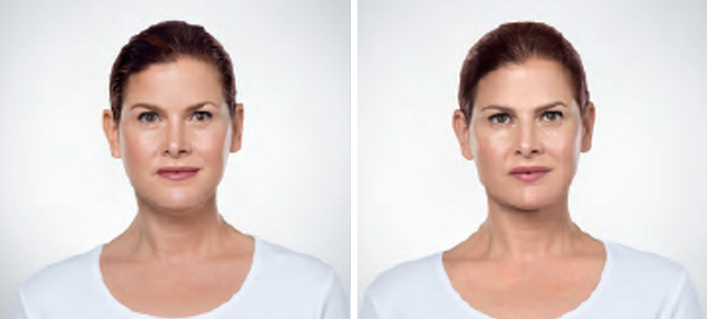 Kybella procedure woman patient before and after front photo 2