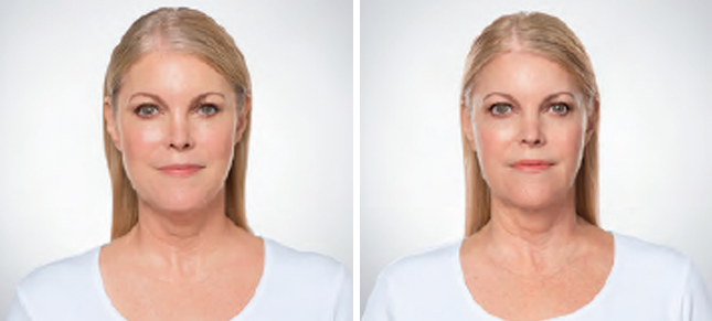 Kybella procedure woman patient before and after front photo 3