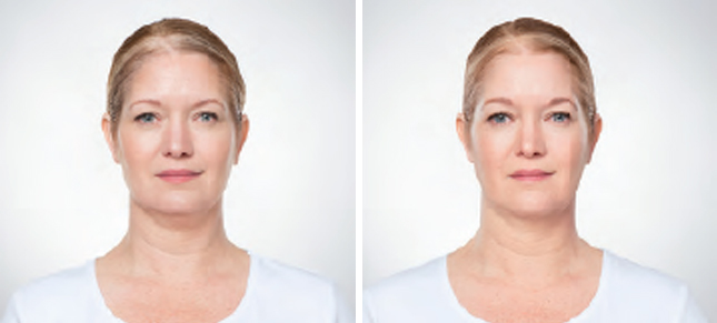 Kybella procedure woman patient before and after front photo 4