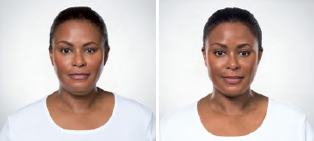 Kybella procedure woman patient before and after front photo 5