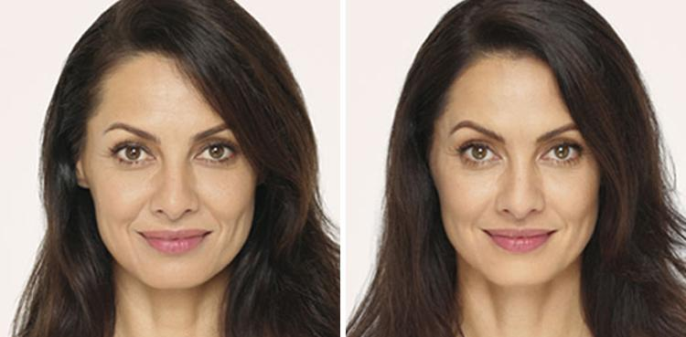 Radiesse procedure woman patient before and after photo 1