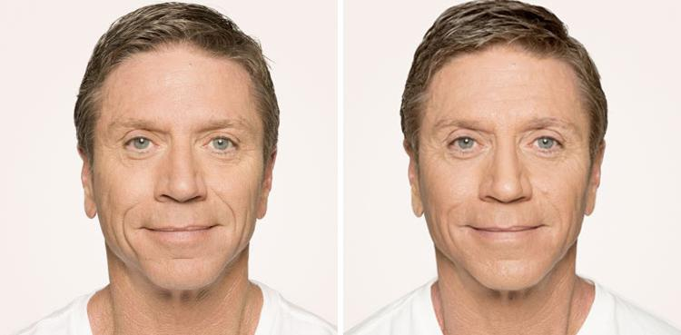 Radiesse procedure man patient before and after photo