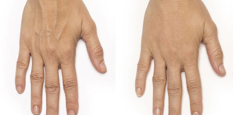Radiesse procedure patient hand before and after photo 1