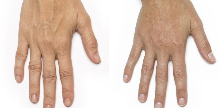 Radiesse procedure patient hand before and after photo 2