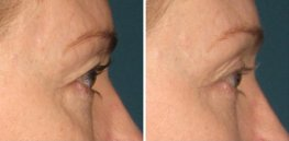 Ultherapy woman patient right side eye area photo 1