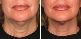 Ultherapy woman patient face front photo 10