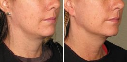 Ultherapy woman patient face right side photo 16