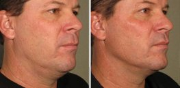 Ultherapy man patient face right side photo 17