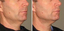 Ultherapy man patient face right side photo 18