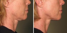 Ultherapy woman patient face right side photo 19