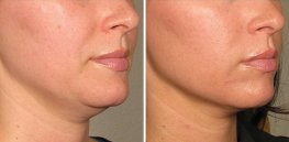 Ultherapy woman patient face right side photo 20