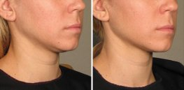 Ultherapy woman patient face right side photo 22