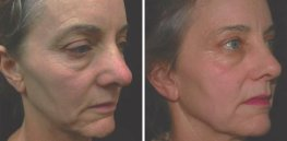 Ultherapy woman patient face right side photo 24