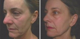 Ultherapy woman patient face left side photo 25