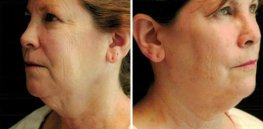 Ultherapy woman patient face left and right side  photo 30