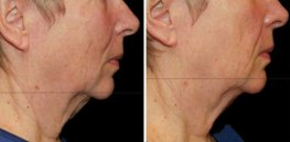 Ultherapy woman patient face right side photo 33