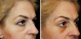 Ultherapy woman patient face right side photo 35