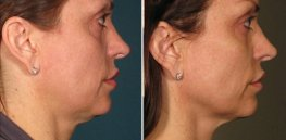 Ultherapy woman patient right side face photo 4
