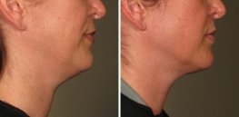 Ultherapy woman patient right side face photo 9